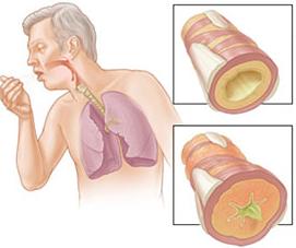 plucne-bolesti